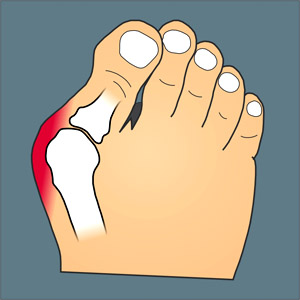 bunion pain relief