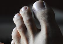 sharp pain in big toe joint